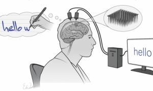 Implanti në tru i jep mundësinë një personi të paralizuar të shkruajë vetëm nëpërmjet mendimeve