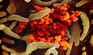 Kështu duket Coronavirus në mikroskop