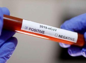 Një mesazh fake për kurimin e Coronavirus po qarkullon në Whatsapp